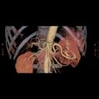 腹部骨血管3D画像