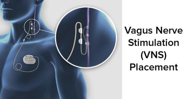 迷走神経刺激装置(VNS)