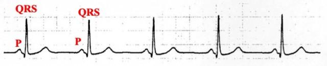 正常洞調律の心電図