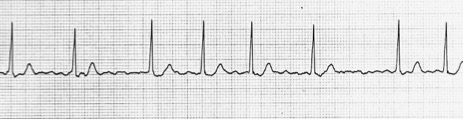心房細動時の心電図