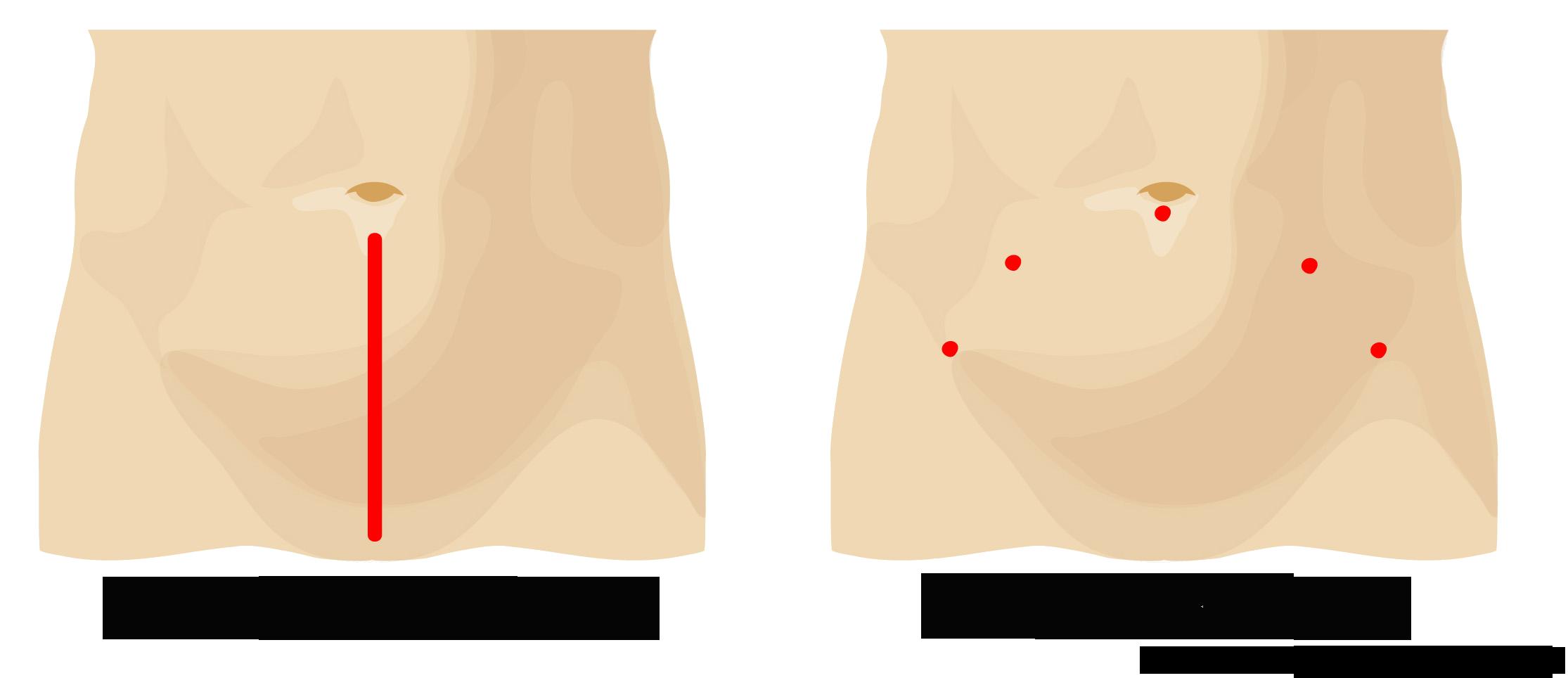 一般手術との創部の比較